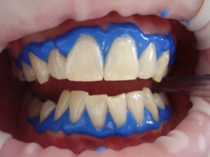 picture of a patient's teeth undergoing treatment